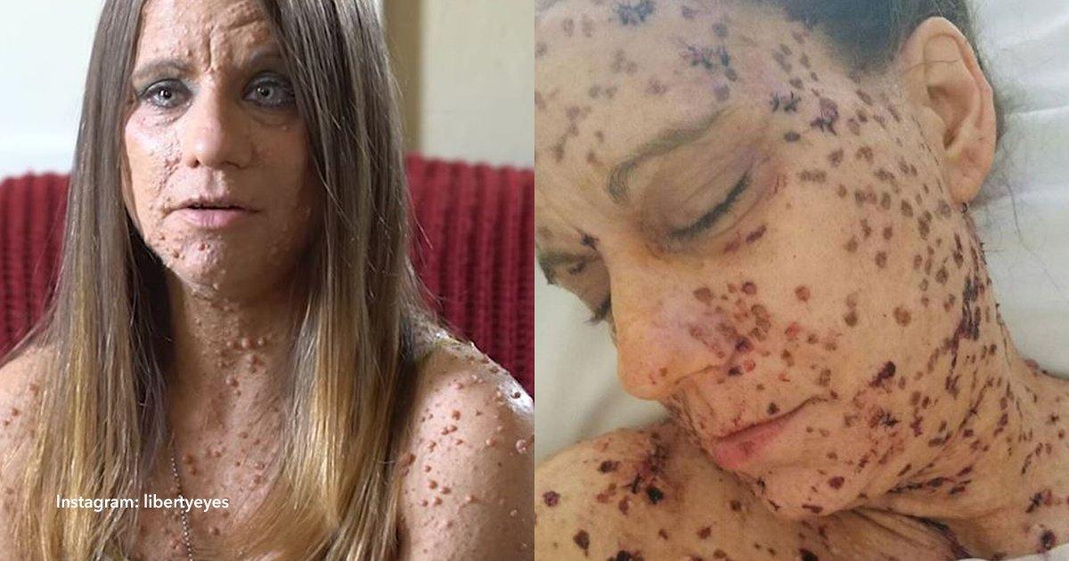 cov 1 16.png?resize=300,169 - Ella tenía más de mil tumores en su cuerpo, pero decidió cambiar y hoy luce completamente diferente