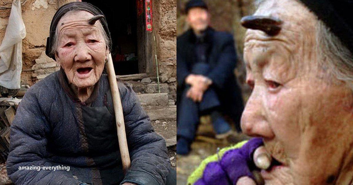 """cov 1 5.png?resize=300,169 - Ella es la """"abuela cabra"""", tiene 101 años y un cuerno en la frente"""