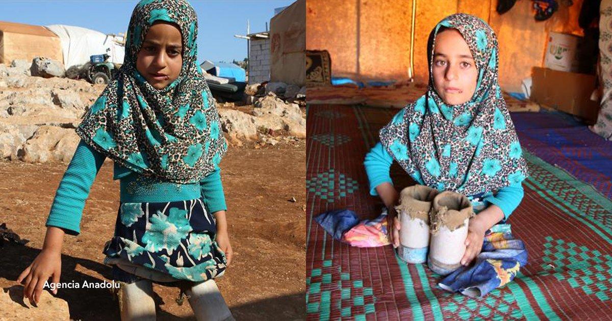 cvo 2.png?resize=648,365 - Maya, la niña siria que utiliza latas en lugar de prótesis, ahora podrá caminar