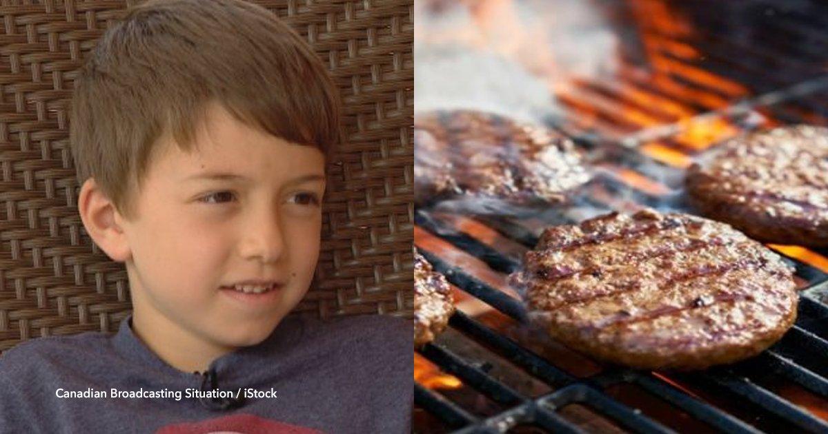 cvo 44.png?resize=300,169 - Un niño fue directo a cirugía luego de comer una hamburguesa hecha por su madre