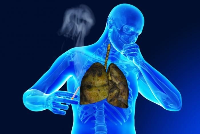 Image result for Respiratory Diseases