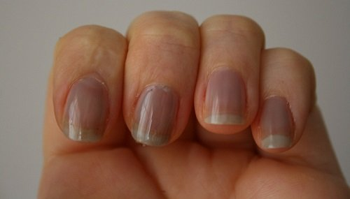Image result for Bluish Nails