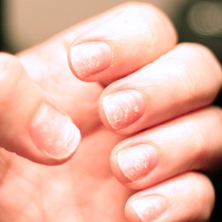 Image result for brittle nails