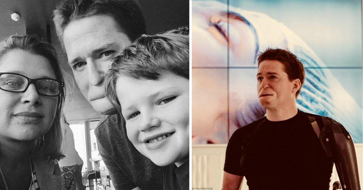 lost limbs.jpg?resize=412,232 - Un père qui a perdu ses lèvres et ses membres suite à une infection mortelle révèle à quel point sa vie a changé