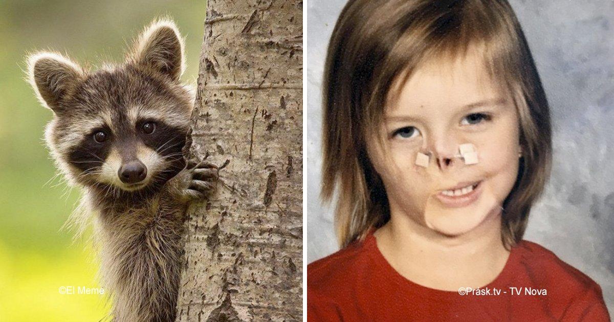 map.jpg?resize=412,232 - Siendo una bebé, un mapache masticó su cara pero a los 11 años un grupo de cirujanos cambiaron su vida