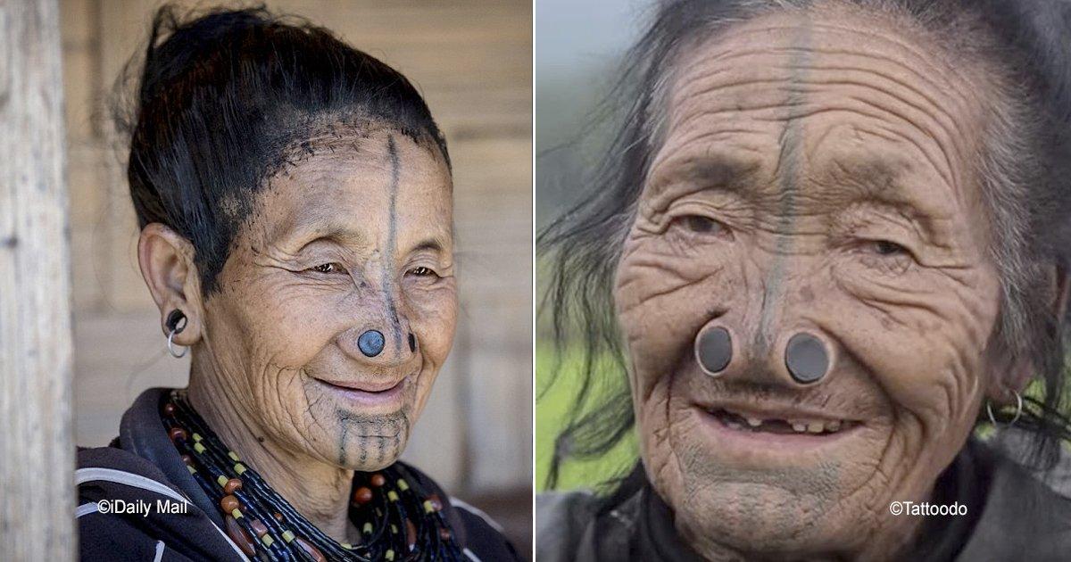 nariz.jpg?resize=412,232 - Las impresionantes fotografías de las mujeres que se deformaban el rostro para evitar un cruel destino