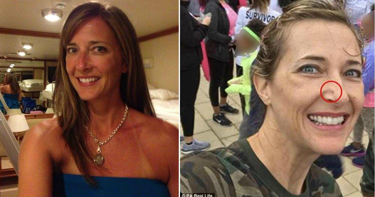 skin cancer.jpg?resize=300,169 - Une addicte du bronzage aimait prendre des coups de soleil jusqu'à ce qu'elle ait le visage reconstruit en raison d'un cancer de la peau