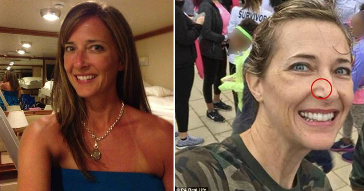 skin cancer.jpg?resize=636,358 - Tanning Addict Enjoyed Getting Sunburnt Until She Had To Have Her Face Rebuilt Due To Skin Cancer