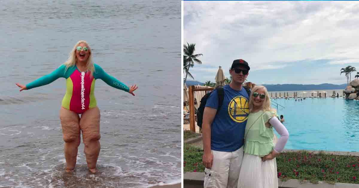 tataaa 3.jpg?resize=636,358 - Woman Sarcastically Replied To A Couple Who Mocked At Her Being In A Swimsuit By Losing 300 Pounds