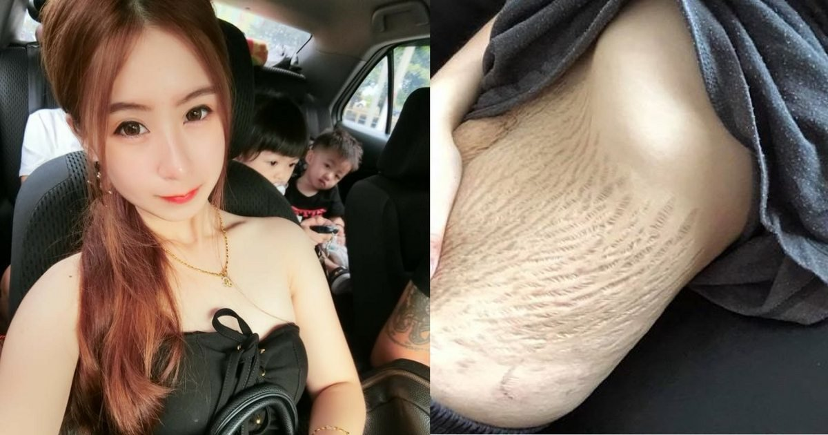these tasks should be done each week13.jpg?resize=412,232 - Woman Has Amazing Comeback For People Who Shame Her For Stretch Marks
