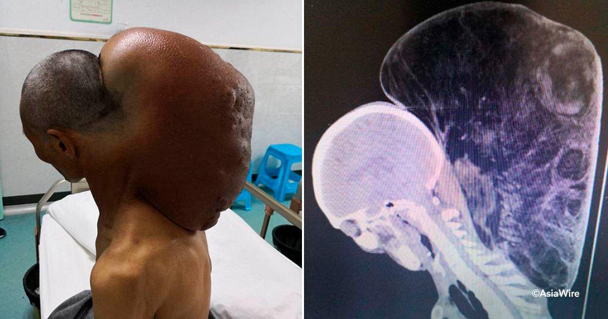 tumor.jpg?resize=1200,630 - Un tumor masivo en el cuello de un hombre ha sido eliminado después de 47 años