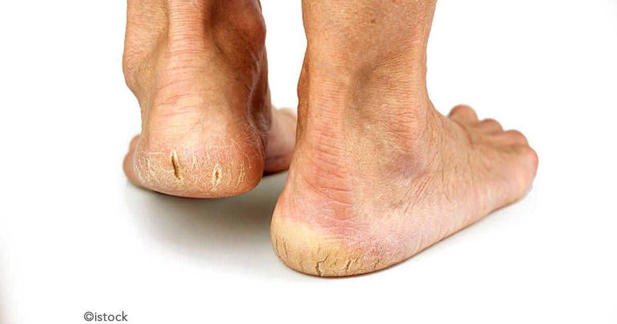 untitled 1 47.jpg?resize=412,232 - ¿Grietas en los talones? 5 enfermedades que pueden presentar este síntoma