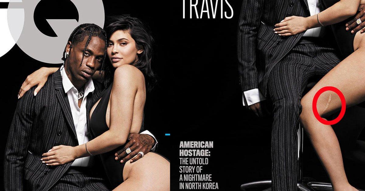 untitled 1 66.jpg?resize=300,169 - Kylie Jenner tem uma cicatriz enorme em sua perna e revela a história para a GQ