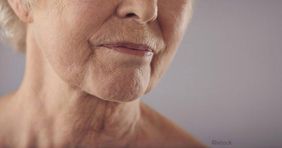 untitled 1 96.jpg?resize=300,169 - ¿Arrugas en el cuello? Recomendación de los expertos para deshacerte de ellas