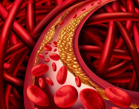 ビタミンD 動脈에 대한 이미지 검색결과