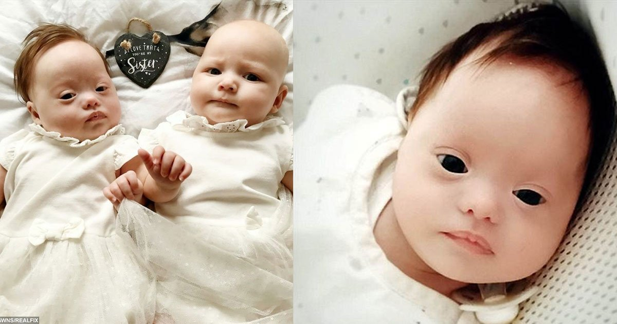 woman gives birth to rare twins one of whom has downs syndrome.jpg?resize=412,232 - Une maman donne naissance à une paire de jumelles extraordinaires