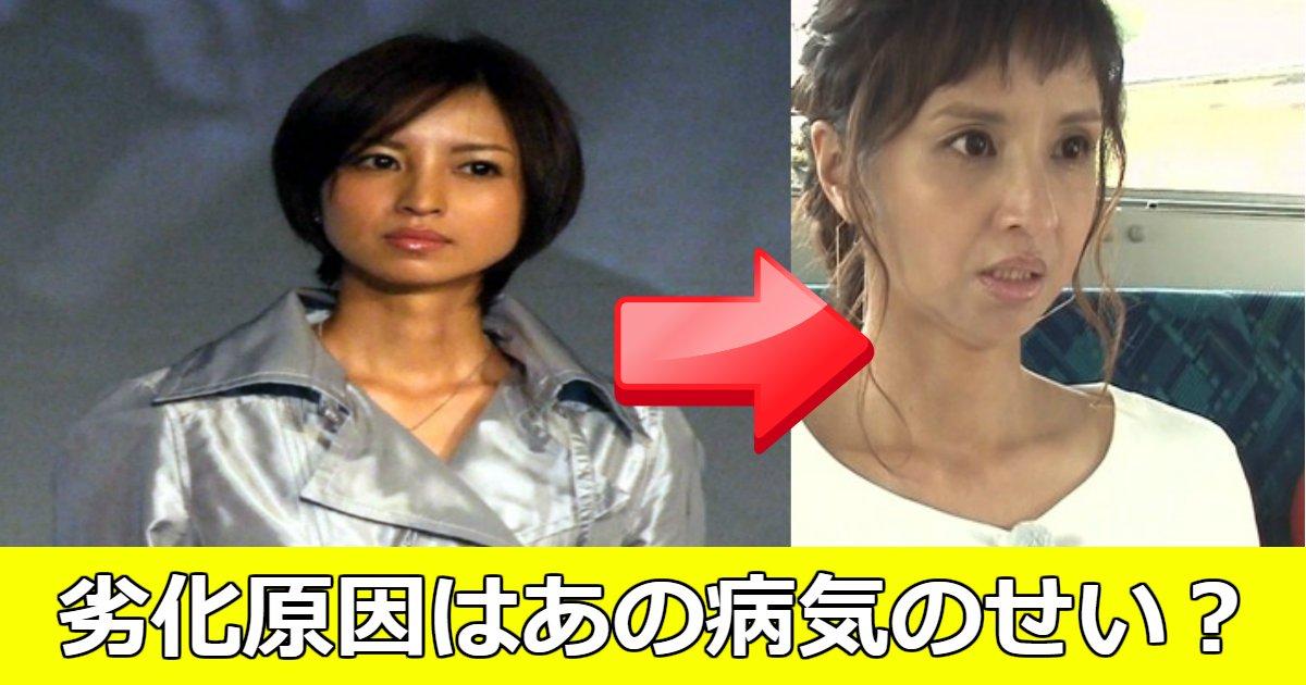 yuko.png?resize=300,169 - 女優・伊藤裕子が劣化した?その原因は病気のせい?