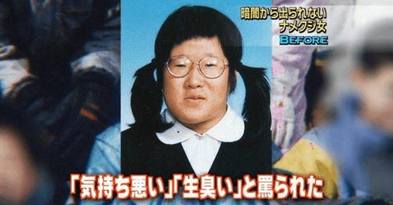 【※衝撃】ナメクジ女と言われた女性が整形→結果にスタジオ騒然・・・(※画像あり)のイメージ