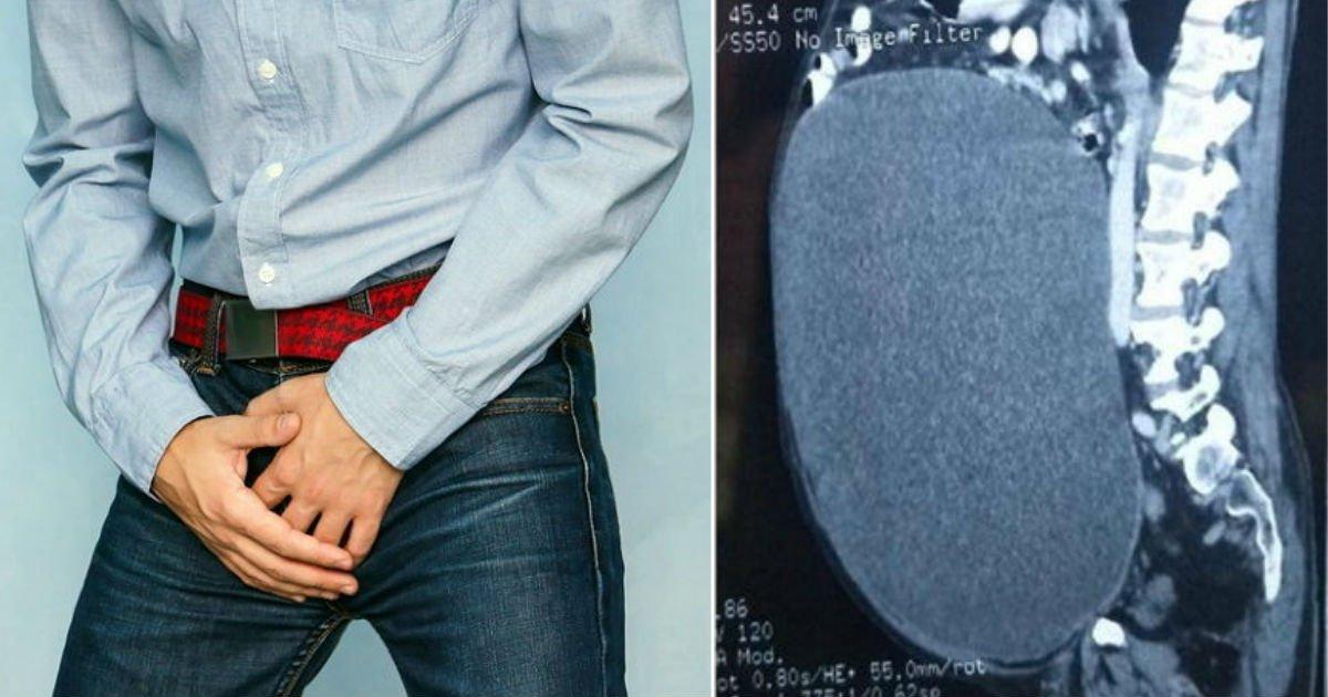 1 113.jpg?resize=1200,630 - 「尿が出にくい」男性の膀胱には「尿11リットル」が溜まっていた