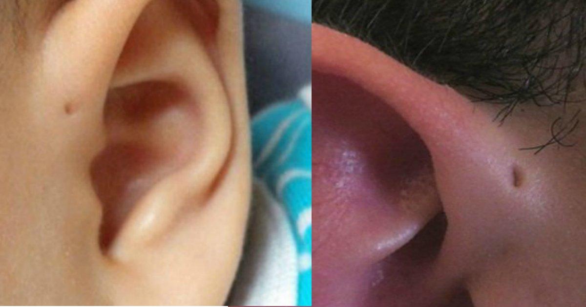 180813 304.jpg?resize=1200,630 - 全世界不到1%的人才有!「耳朵旁邊的洞」其實是・・・?