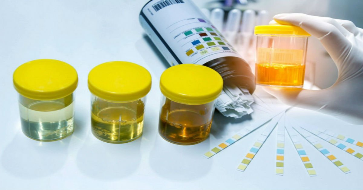 3 132.jpg?resize=1200,630 - What The Color of Your Urine Says About Your Health