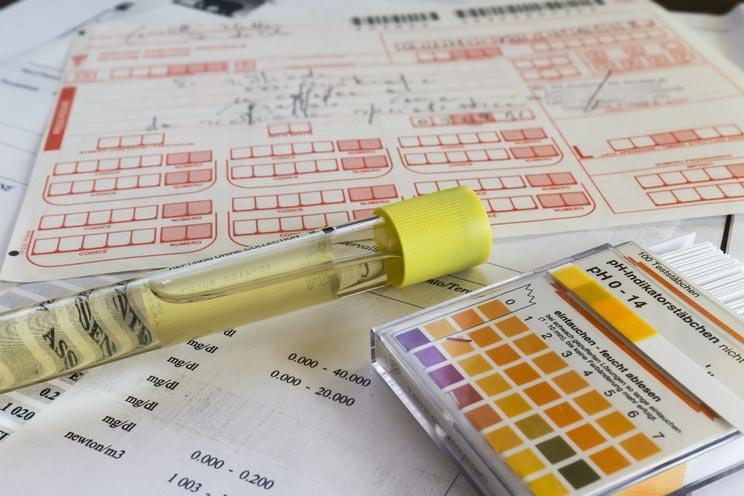 Test-tube-for-urine-examination.jpg
