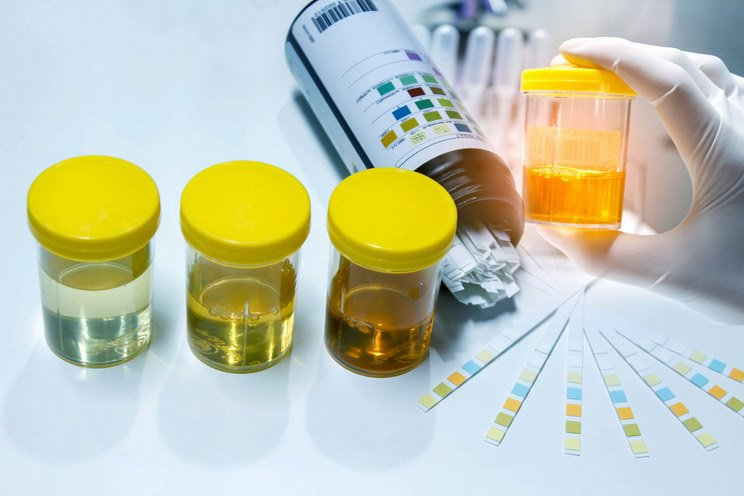 Urine-sample-with-reagent-strip-for-urinalysis-in-laboratory.jpg