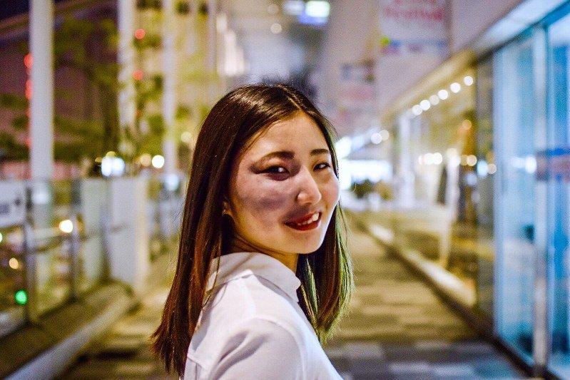 Image result for 彩さん 顔のあざ
