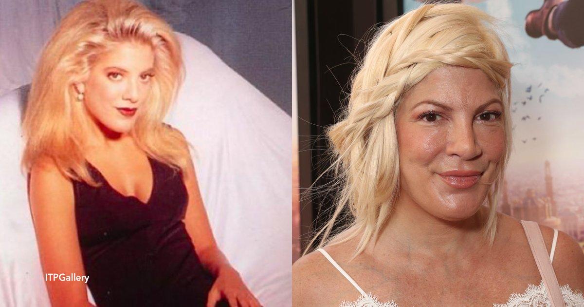 """cov 1 18.png?resize=648,365 - Tori Spelling, irreconocible: La actriz de """"Beverly Hills 90210"""" se considera """"adicta al botox"""""""