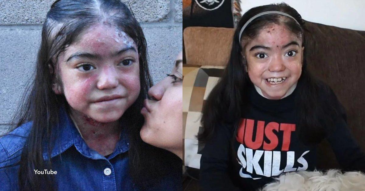 cov 1 27.png?resize=648,365 - Una niña con piel de cristal decide ser youtuber para concientizar sobre su enfermedad y darle ánimos a los que la padecen