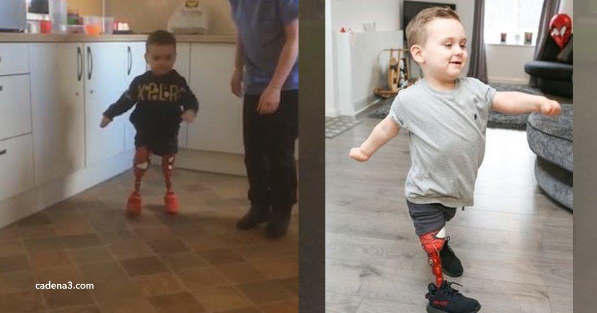 """cov 1 4.png?resize=300,169 - Este menino voltou a andar graças à sua prótese de """"Homem Aranha"""""""