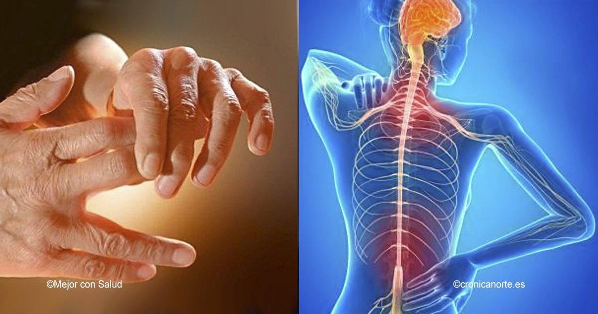 cover22 17.jpg?resize=648,365 - Si tus manos se entumecen o sientes hormigueo, hay 11 razones por las que debes acudir a un médico