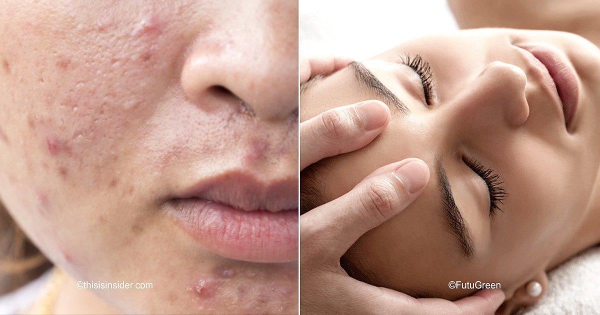 cover22.jpg?resize=412,232 - Evita el acné con este eficaz automasaje facial de 4 pasos