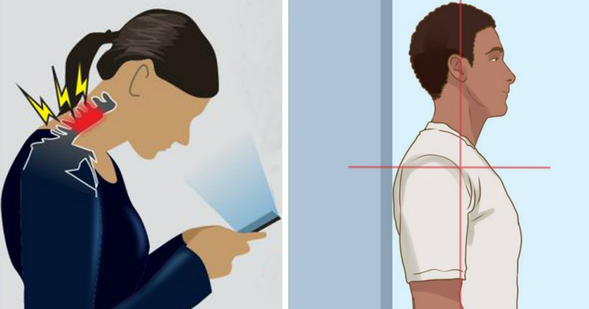 dowagers hump.jpg?resize=412,232 - What Is Dowager's Hump and How to Fix It (It's Not Only About Your Posture)