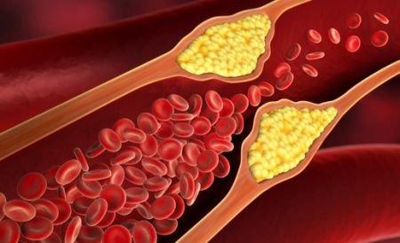 動脈硬化에 대한 이미지 검색결과