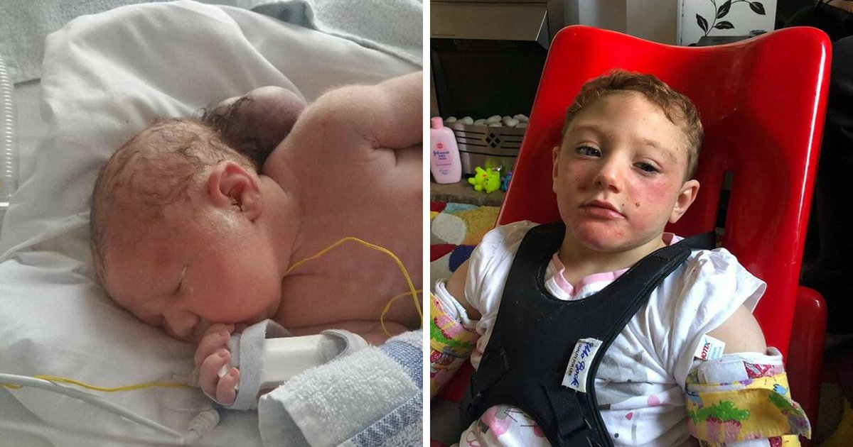 feature2.png?resize=636,358 - Miracle Baby Born With Brain Outside Her Head – Now 3, She Has Defied Odds To Survive