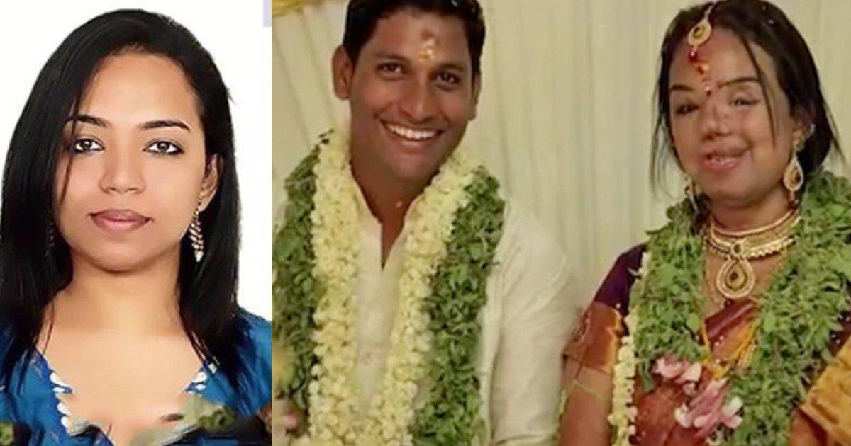 featured image 7.jpg?resize=636,358 - Un Indien demande en mariage sa petite amie après que son visage ait été défiguré dans un accident.