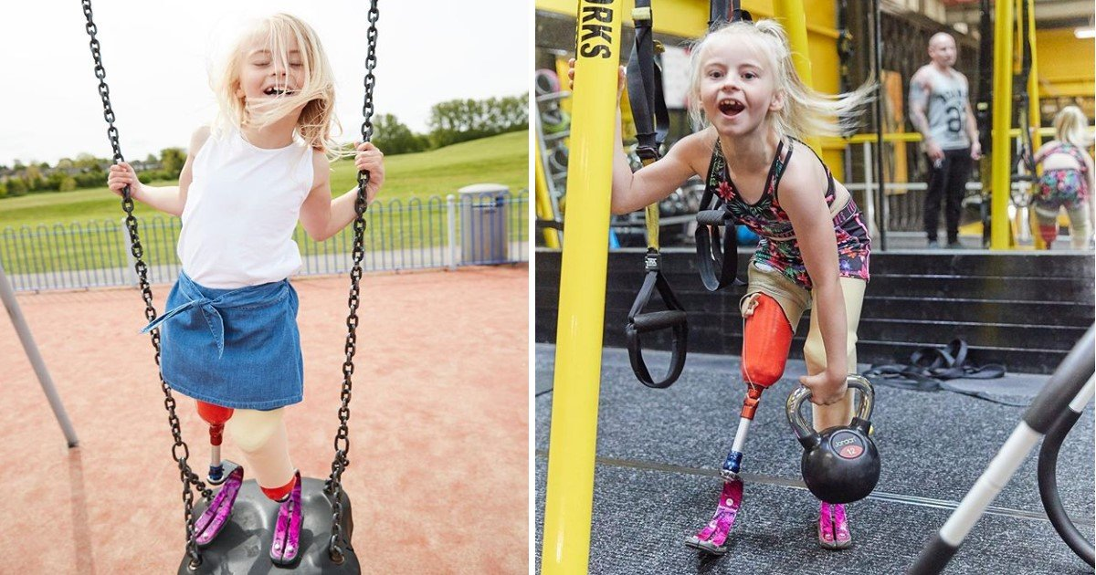 featured image 79.jpg?resize=412,232 - Little Girl With No Legs And Big Dreams Lands Modeling Contract With Top Fashion Brand