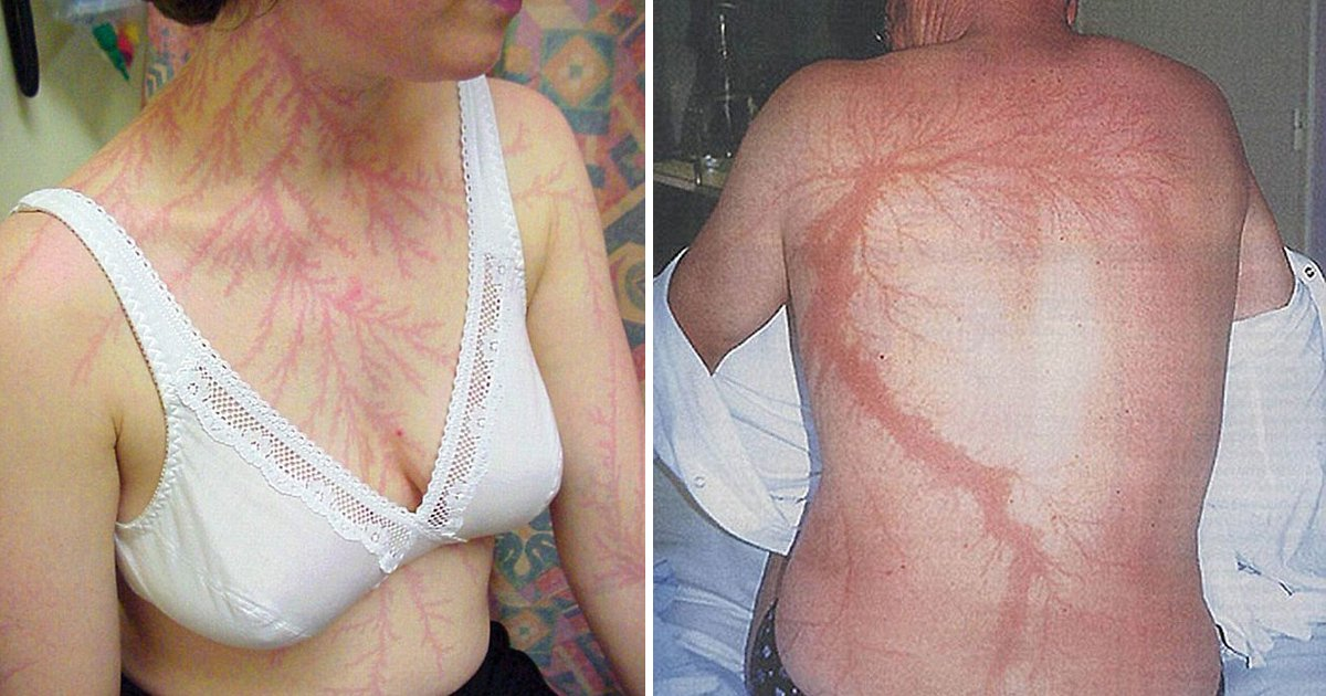 ggg 1.jpg?resize=636,358 - Extraordinary Images Show Fern-like Markings On Peoples' Body After They Got Struck By Lightning