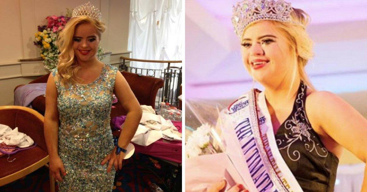 kate8.png?resize=300,169 - Une fille de 19 ans devient le premier mannequin trisomique à remporter un concours de beauté mondial