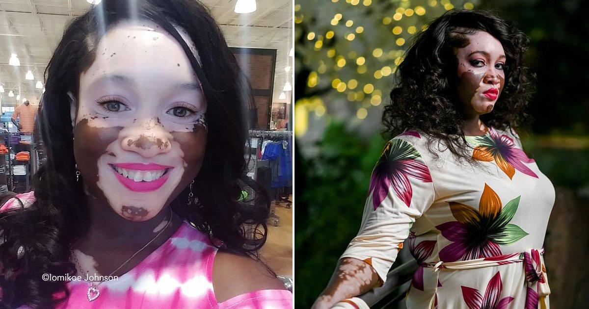 kk.jpg?resize=1200,630 - Esta mulher negra está lentamente ficando branca