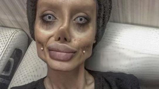 「アンジェリーナ・ジョリー 美容整形 50回」の画像検索結果