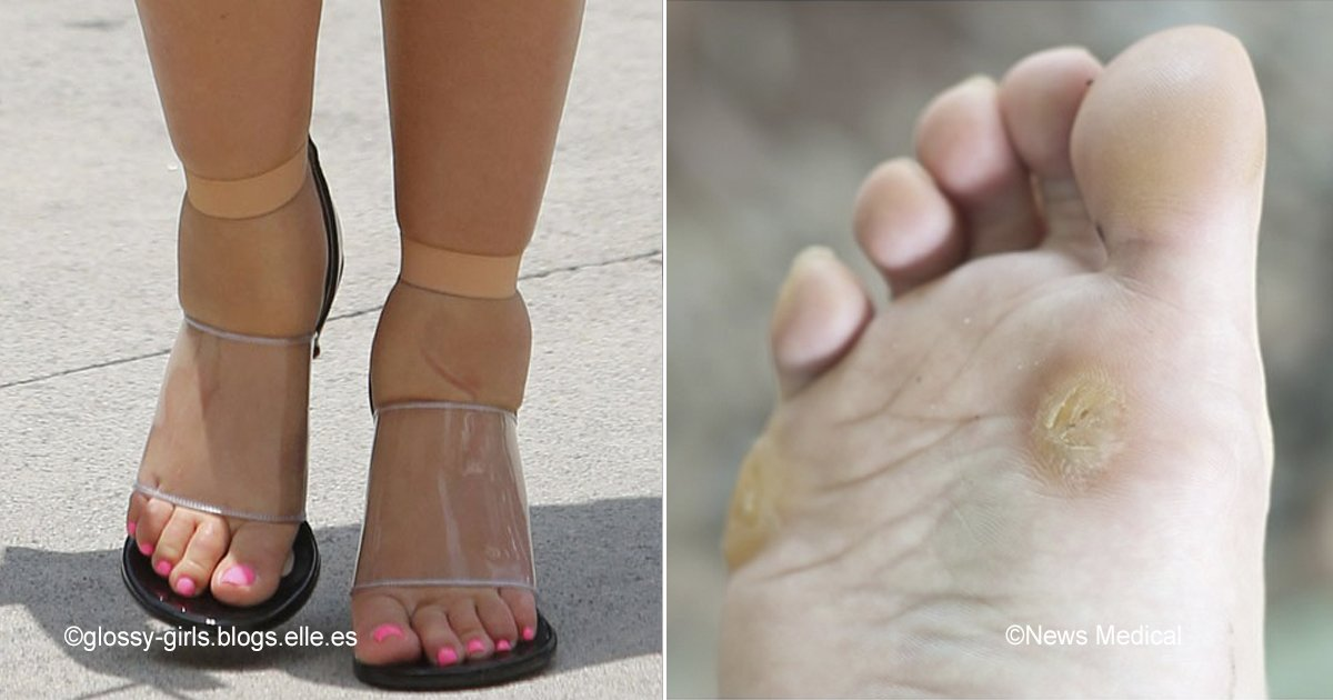 macro 6.jpg?resize=300,169 - 6 tips para evitar molestias incluso con los zapatos más incómodos