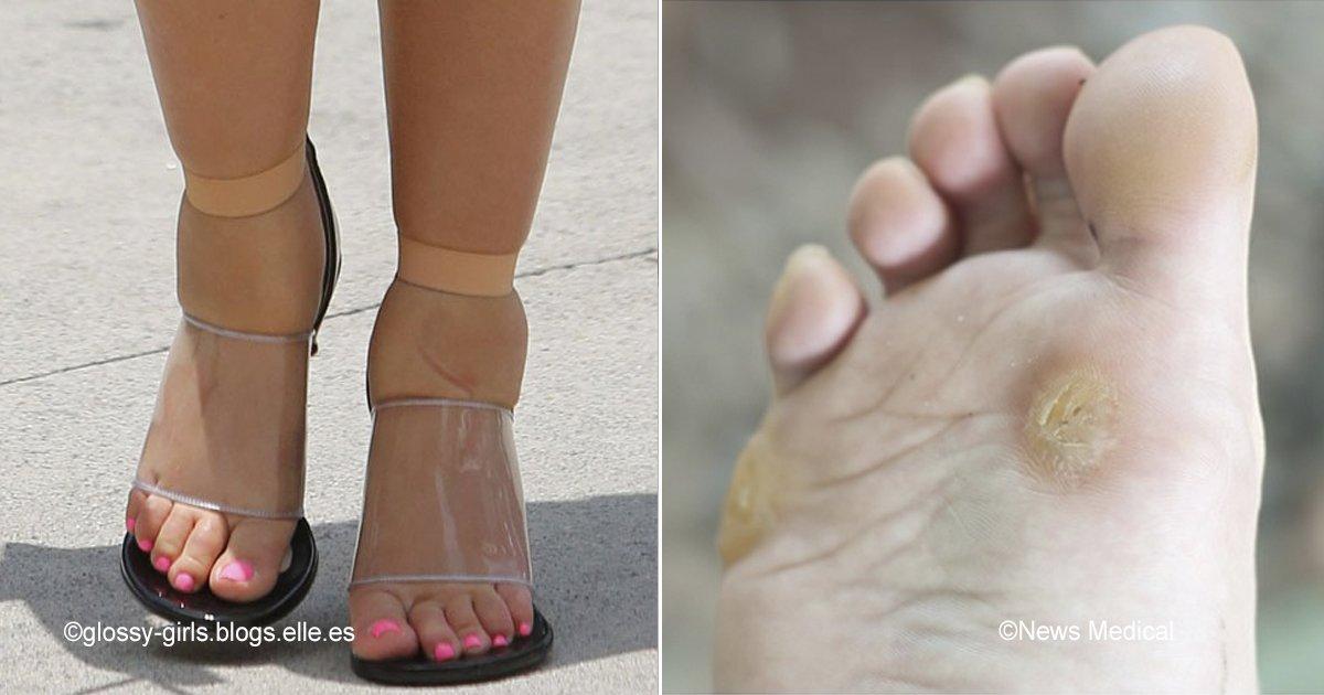 macro 6.jpg?resize=412,232 - 6 tips para evitar molestias incluso con los zapatos más incómodos