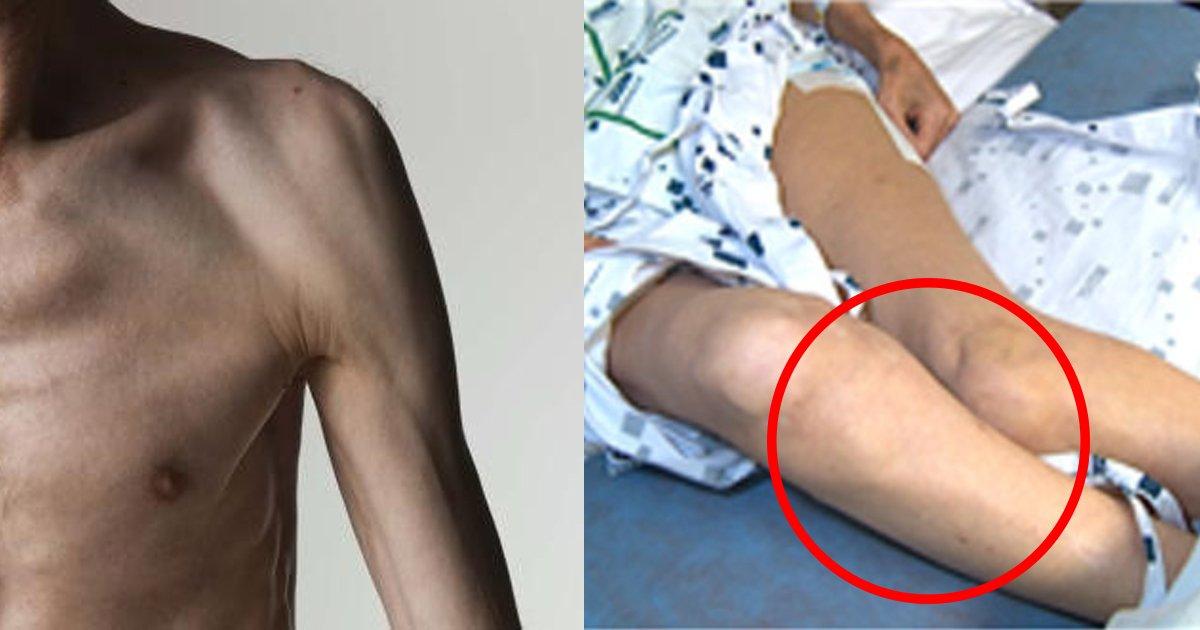 musclelow.jpg?resize=1200,630 - 【高齢社会の日本】50歳以上の約3割が筋力低下に悩んでいる?