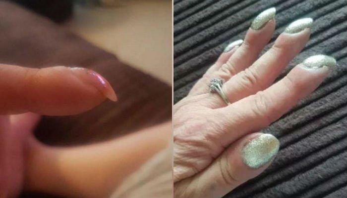 nail.jpg?resize=300,169 - 両親の「爪の形」が曲がっていたら、直ちに「病院」に行かなければならない!!