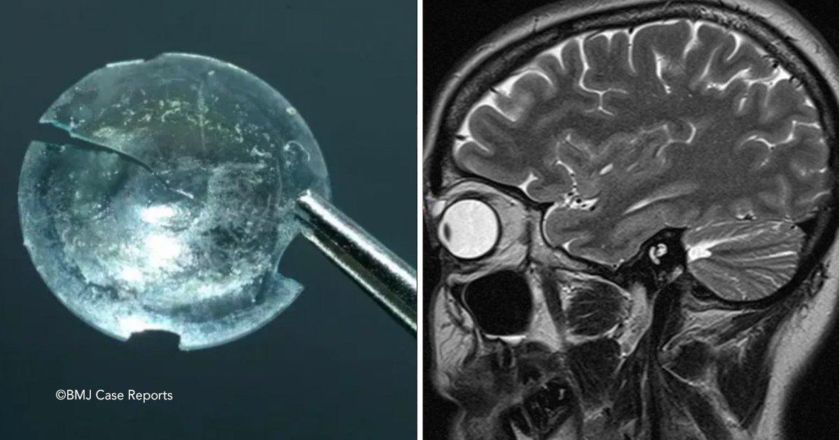 ojo.jpg?resize=300,169 - La mujer tuvo una lente de contacto atascada en el ojo por 28 años