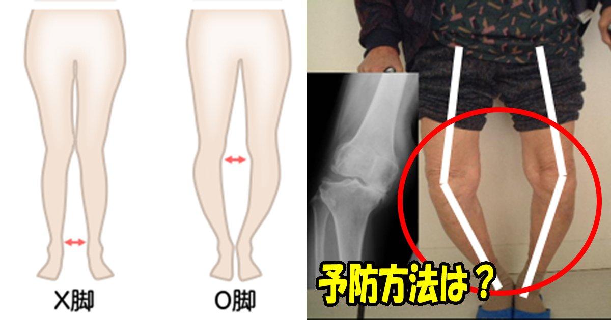 prevent.jpg?resize=412,232 - 変形性膝関節症を予防はウォーキングが最も効果的だった?!