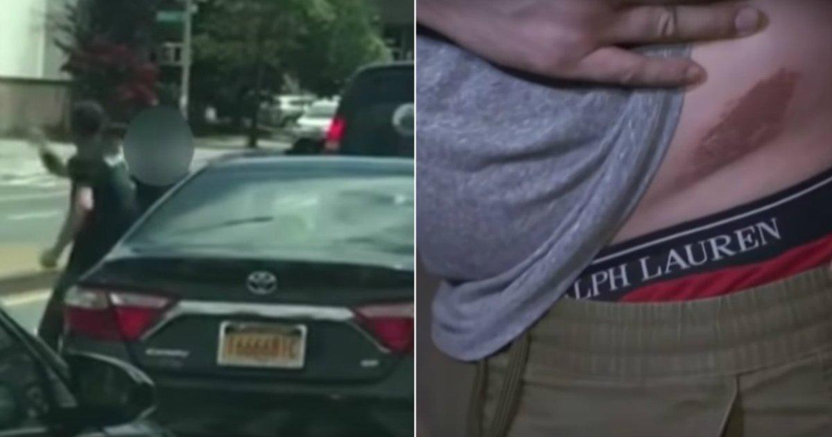 road rage.jpg?resize=300,169 - Accès de rage sur les route de New York, un jeune homme se fait attaqué par un conducteur avec un cutter