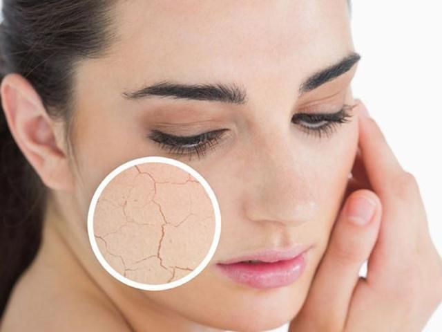 Dry and irritated skin